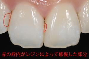 むし歯の治療法