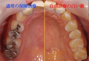 白い歯との比較