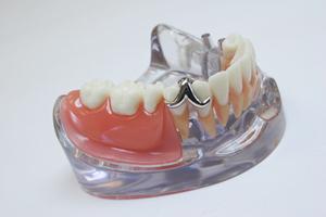 義歯(入れ歯)のメリットとデメリット