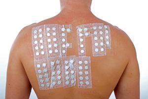 ノンメタル治療のパッチテスト
