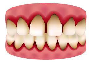 歯茎の病気、歯周病の特徴