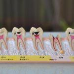 歯の根の模型