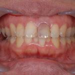 矯正と補綴による前歯の審美修復