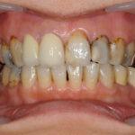 不良補綴が原因で壊れた咬み合わせの治療と審美回復