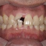 事故で前歯を失われた方の審美的インプラント治療