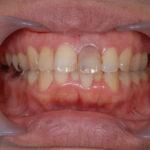 歯並び矯正の症例集