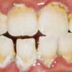 加古川アップル歯科のクリーニングについて