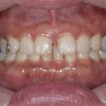 2回で終わった正中離開(すきっ歯)のラミネートベニアによる治療